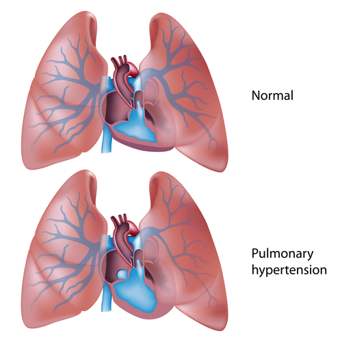 Pulmonary Hypertension Lungs
