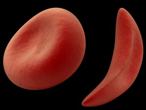 PH and Sickle Cell Disease