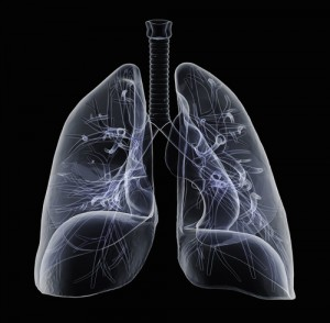 Sarcoidosis-Associated Pulmonary Hypertension