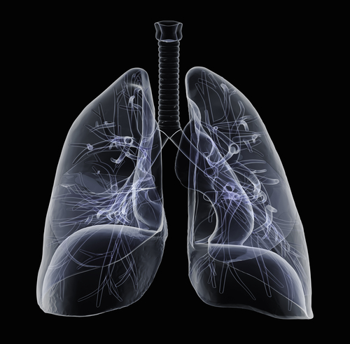 Sarcoidosis-Associated Pulmonary Hypertension Highlighted By Recent Study