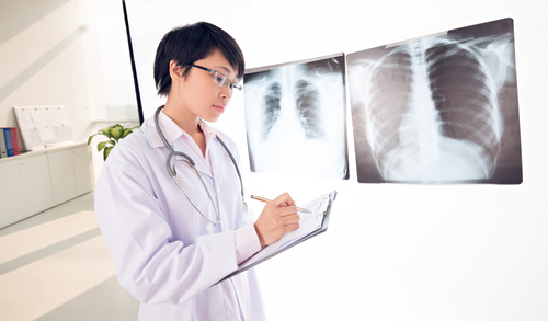 New Pulmonary Fibrosis Diagnostic Tool Would Be Faster & Quicker