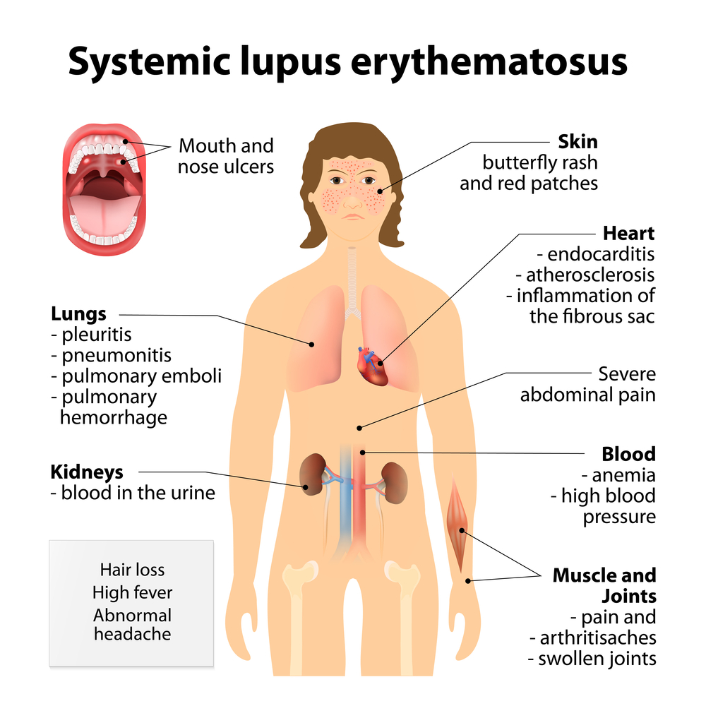 New Case-Study Highlights PAH-associated with Systemic Lupus Erythematosus