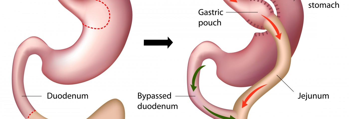 Bariatric Surgery Improves PAH in Patients with Obesity
