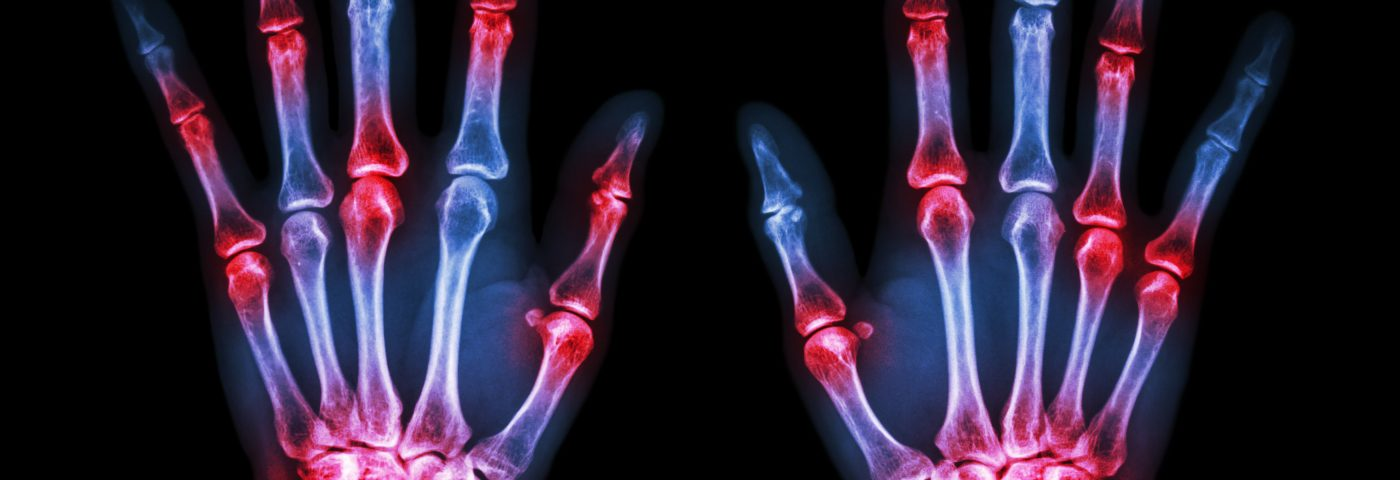 Screening Rheumatoid Arthritis Patients for PAH May Be Relevant
