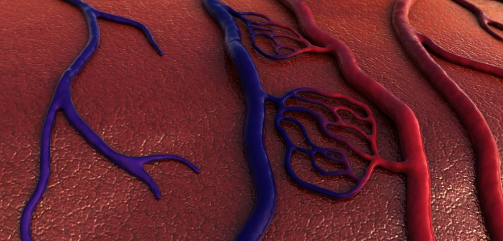 Blood Vessel Protein May Predict Lung Hypertension Severity and Response to Therapy