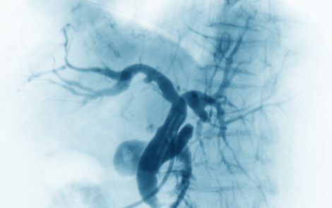 Chronic Thromboembolic Pulmonary Hypertension Patients Still Benefit Six Months After Balloon Angioplasty