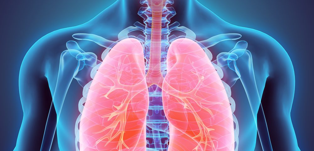 Dichloroacetic Acid Improves Pulmonary Hypertension Patients' Lung Function, Study Shows