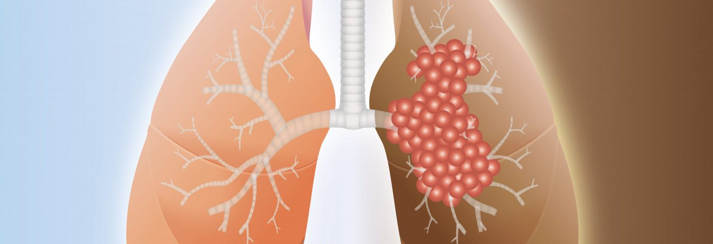 How Advanced Lung Cancer Might Lead to PAH Traced in Study